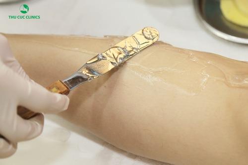 Chuyên viên đang thoa gel lạnh giúp quá trình triệt lông nhẹ nhàng