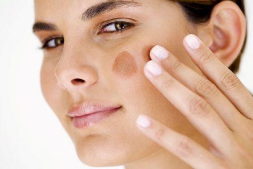 Chàm xuất hiện trên mặt gây mất thẩm mỹ làn da