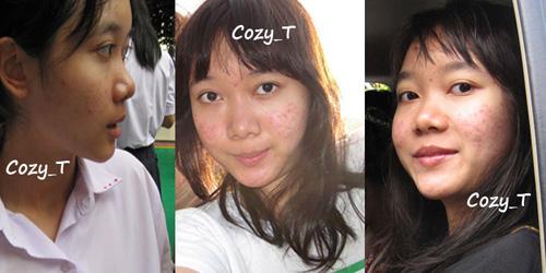 Nhan sắc của Cozy trước khi điều trị mụn