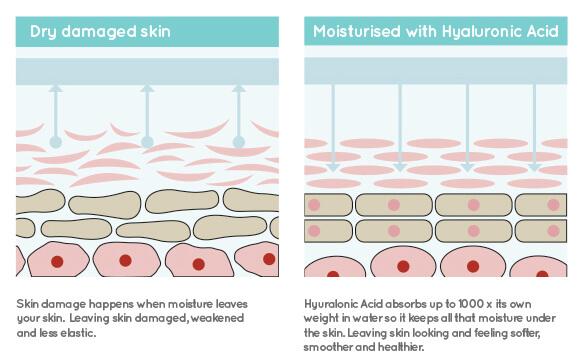 Thành phần axit hyaluronic có khả năng giữ ẩm vượt trội