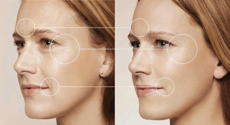 Trẻ hóa da bằng than hoạt tính là sự kết hợp giữa than hoạt tính và laser.