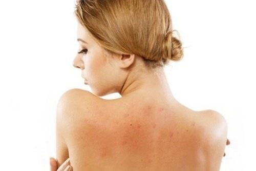 Lưng trần sẽ bớt đi vẻ quyến rũ khi thường xuyên bị mụn tấn công.