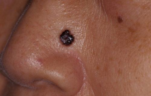 Bạn không nên tùy tiện tẩy nốt ruồi tại nhà nếu chưa tham khảo ý kiến bác sĩ hoặc chuyên gia da liễu.