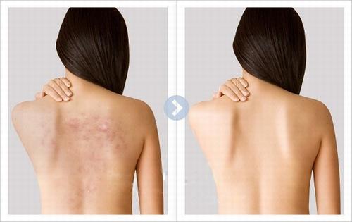 Để trị mụn lưng hiệu quả, bạn cần sớm gặp chuyên gia và điều trị bằng công nghệ ánh sáng hiện đại.