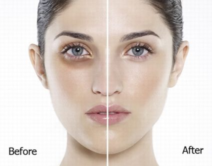 Làn da được thay đổi khi áp dụng liệu pháp chống lão hóa và làm sáng da