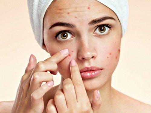 Bạn có thể sử dụng nha đam để giải cứu làn da mụn.