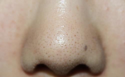 Mụn đầu đen và sợi bã nhờn thường xuất hiện nhiều trên cánh mũi, gây mất thẩm mỹ cho cả gương mặt.