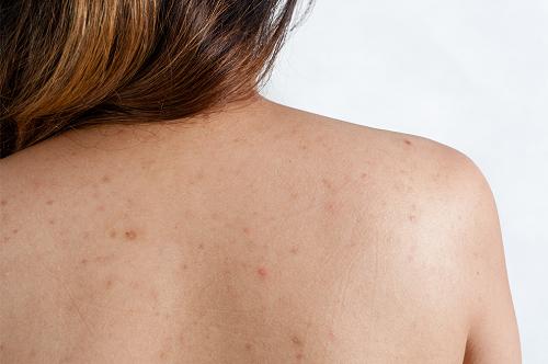 Mụn lưng khó chữa trị hơn mụn ở mặt