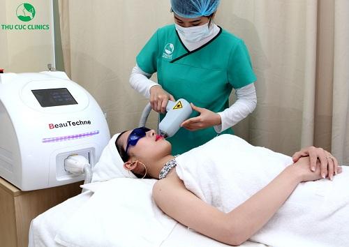 Khách hàng đang trải nghiệm dịch vụ triệt lông mép bằng Laser Diode tại Thu Cúc Clincis.