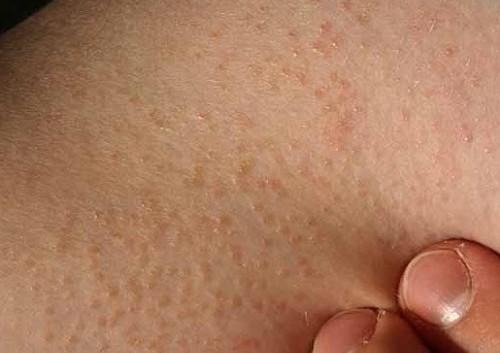 Viêm nang lông gây cảm giác khó chịu, lại ảnh hưởng lớn đến tính thẩm mỹ, cần được điều trị kịp thời và hoa học.