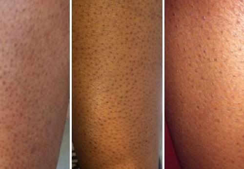 Một số dạng biểu hiện của viêm nang lông.