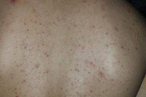 Tình trạng mụn lưng trở nên phổ biến ở nhiều đối tượng