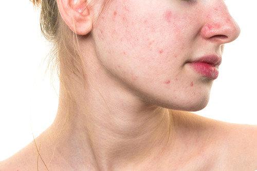 Tẩy tế bào chết giúp loại bỏ đi các lớp tế bào dư thừa, giúp làm sạch bụ bẩn và chất nhờn trên da.