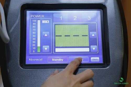 Laser CO2 là công nghệ trị mụn thịt quanh mắt an toàn và hiệu quả