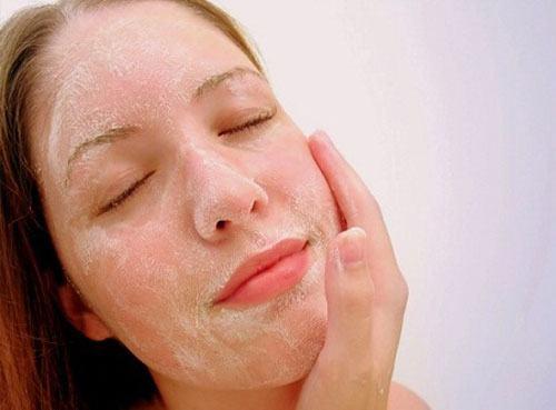 Làn da phụ nữ sau sinh do cơ sự thay đổi nội tiết tố và chưa biết cách bảo vệ, chăm sóc da hợp lý.