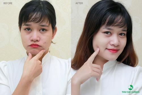 Hình ảnh trước - sau của khách hàng sau khi điều trị mụn bằng công nghệ Blue Light