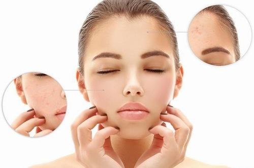 Mụn vẫn có thể xuất hiện khi sử hữu làn da khô