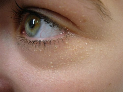 Đốt mụn thịt quanh mắt có ảnh hưởng gì không?