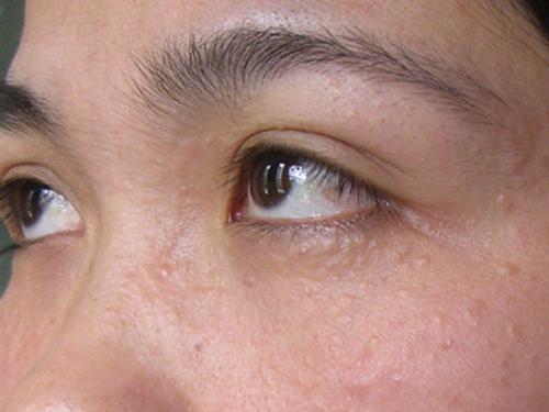 Trị mụn thịt quanh mắt có ảnh hưởng đến thị lực không?