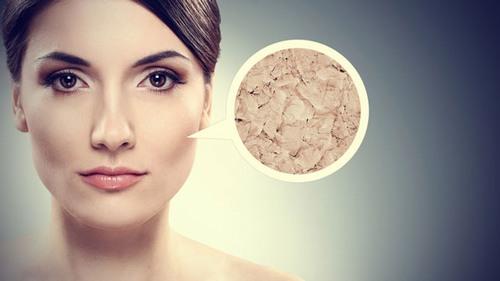 Da khô là tình trạng da bị thiếu nước, luôn có cảm giác căng và khô rát.
