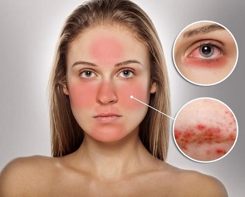 Da nhạy cảm thường xuyên xuất hiện mẩn đỏ, mụn đỏ, mụn viêm hoặc phát ban.