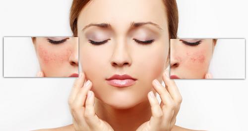 """Da nhạy cảm được xem là loại da """"chảnh"""" nhất, """"khó chiều"""" nhất trong các loại da."""