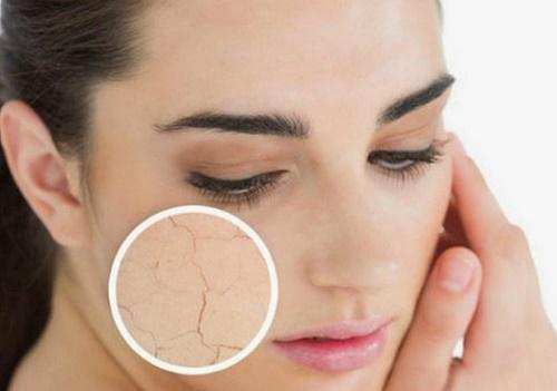 các lớp tế bào này không bong ra ngay lập tức mà tạo thành một lớp dày bám trên bề mặt da.