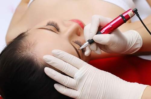 Các phương pháp truyền thống này tuy dễ thực hiện lại tiết kiệm chi phí nhưng rất dễ gây tổn thương cho da.