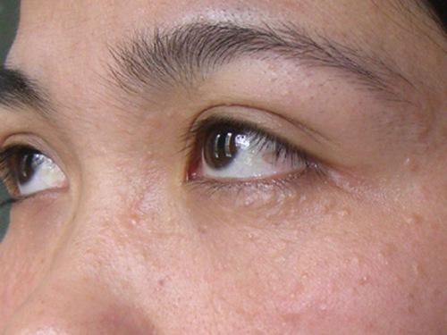 Điều trị mụn thịt quanh mắt tại nhà có tốt không?