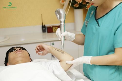 Toàn bộ quá trình xóa hình xăm Laser Yag ở Thu Cúc Clinics diễn ra rất nhẹ nhàng, không đau, không làm tổn thương, không để lại sẹo.