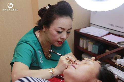 Công nghệ Laser YAG giúp chỉnh sửa các đường xăm mí mắt, xăm cung mày mà không đau, không để lại sẹo.