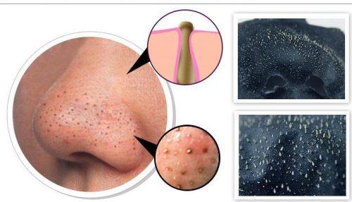 Sử dụng miếng lột cũng là cách làm sạch mụn đầu đen hiệu quả