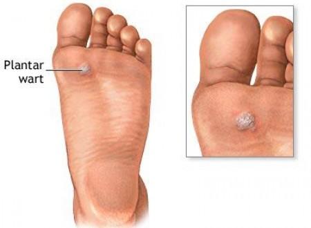 Mụn cóc được hình thành do virut HPV nên không dễ điều trị khỏi bằng các nguyên liệu tự nhiên thông thường