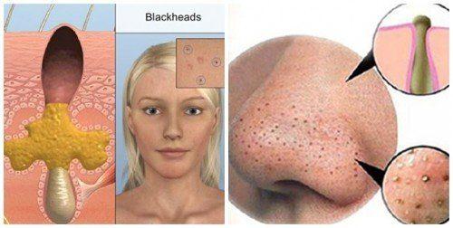 Mụn đầu đen là các nhân mụn trứng cá hở do phản ứng oxy hóa chuyển thành màu đen