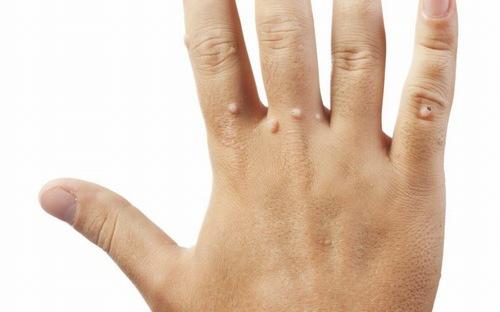 Mụn cóc bị gây ra bởi virus HPV, một loại virus có khả năng lây nhiễm cực kì nhanh