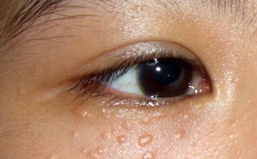 Mụn thịt xuất hiện rải rác trên mặt, chủ yếu là vùng quanh mắt