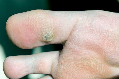 Trong khi đó, mụn cóc thường mọc ở chân, tay, vùng kín mà nguyên nhân là do sự sinh sôi, nảy nở của các vi rút HPV (một loại có khả năng sinh tồn dai dẳng và lây lan nhanh chóng)