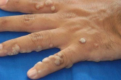 Mụn cóc là một trong những tình trạng da phổ biến, thường xuất hiện rải rác trên cơ thể, đặc biệt là ở các ngón tay