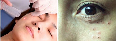 Bắn mịt thịt quanh mí mắt tồn tại nhiều rủi ro, thậm chí ảnh hưởng tới thị lực