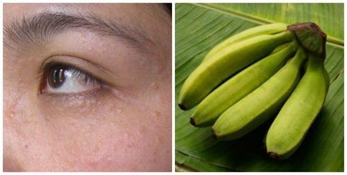 Kiên trì sử dụng chuối xanh là một trong những cách chữa trị mụn thịt tại nhà