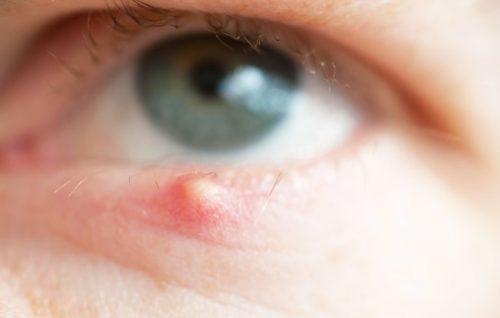 Mụn lẹo hình thành ở mắt do sự xâm nhập của các ổ vi khuẩn độc hại