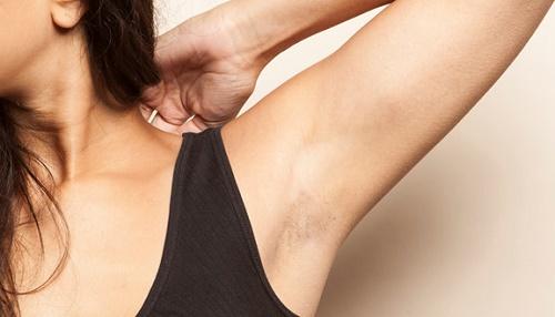 Vùng da dưới cánh tay rậm rạp lông là nỗi ám ảnh của hầu hết chị em vì gây mất thẩm mỹ.