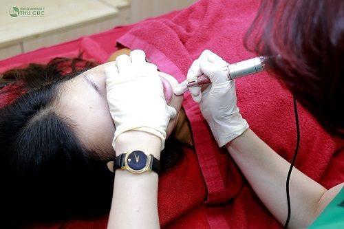 Phun môi là kĩ thuật tiên tiến, kế thừa những ưu điểm của phương pháp xăm môi trước đây.
