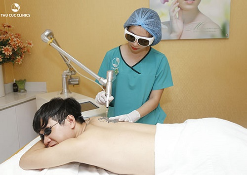Sau khi xóa hình xăm, bạn cần có chế độ chăm sóc da phù hợp để đảm bảo vùng da điều trị sớm phục hồi.