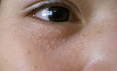 Mụn cóc là những nốt nhỏ, có đường kính thường bằng đầu tăm và mọc ở trên mặt