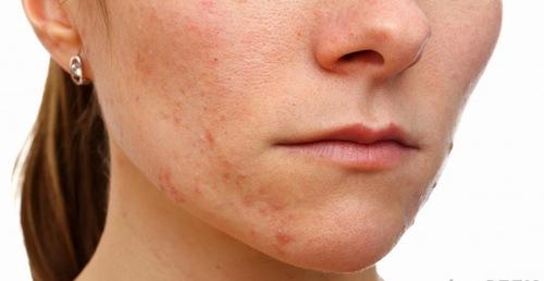 Thắc mắc trị mụn có nên đắp mặt nạ không ?