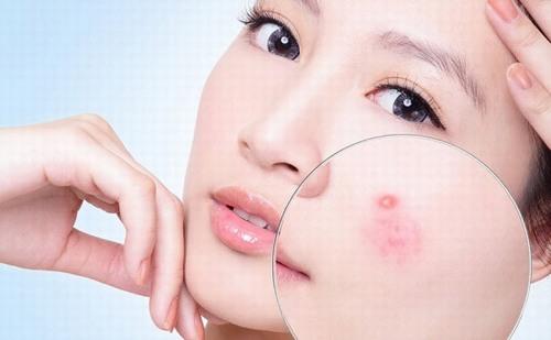 Sau Tết, làn da thường gặp rất nhiều vấn đề rắc rối, trong đó có mụn nhọt
