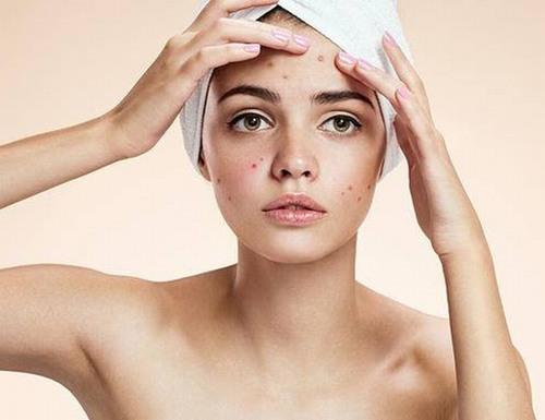 Sau Tết da thường nổi mụn và xuất hiện quầng thâm mắt