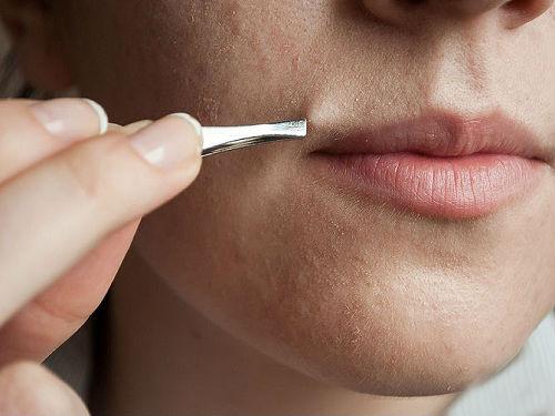 Công nghệ Laser Diode là phương pháp triệt lông vĩnh viễn mới nhất hiện nay.