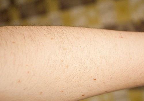 Thu Cúc Clinics đang ứng dụngcông nghệ triệt lôngthế hệ mới nhất Laser Diode, giúp bạn triệt gọn nang lông.